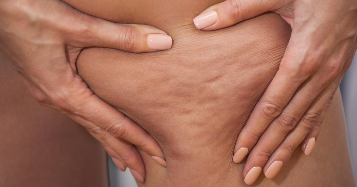 السيلوليت… كيف يتشكل ومن الأكثر عرضة للإصابة به؟